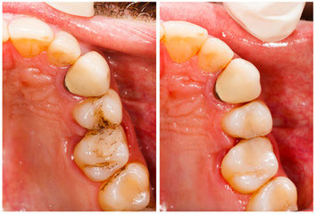 © fotolia.de 54456591  - Dental Treatment / Sandor Kacso