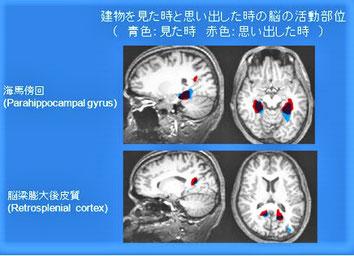 fMRI:脳の構造