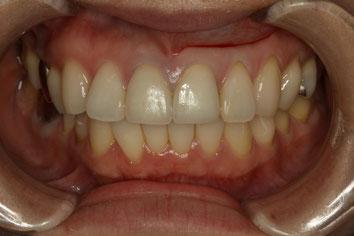 前歯の並びをマウスピース矯正で改善