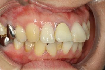 前歯が出っ歯な歯並びのケース