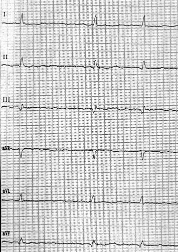 EKG Vorhofflimmern Vor Flecainid