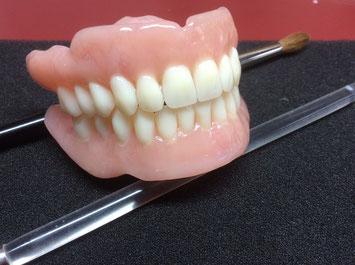 Vollprothese Schöne Zähne Natürlich Prothese