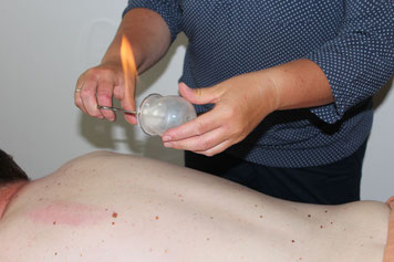 Akupunktur Dresden, TCM Dresden, Kinder Akupunktur, Allergie, Migräne, Kopfschmerz Akupunktur, Schmerztherapie Akupunktur, Raucherentwöhnung, Rückenschmerzen