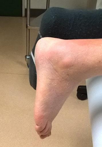 perte de l'équin physiologique, pied tombant, rupture Achille, Dr Rémi chirurgie orthopédique Toulouse