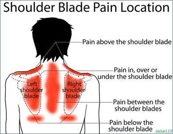 札幌市-右肩甲骨の痛み,左肩甲骨の痛み,肩甲骨の間の痛み