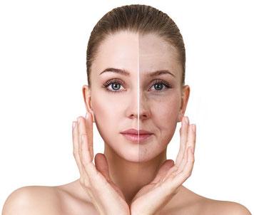 tecarterapia dermatofunzionale, biolifting viso