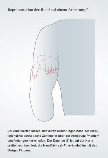Wird eine Hand amputiert, kann eine Repräsentation derselben auf dem Armstumpf entstehen. Die Betroffenen fühlen dann an der jeweiligen Stelle Berührungen, als würden sie an der Hand berührt. Grafiker: Kay Hoffmann