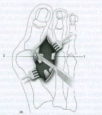 Release der lateralen Anteile der Kapsel des ersten Metatarsophalangealgelenks durch multiple Stichinzisionen. Dann wird die Grosszehe kraftvoll in eine Varusstellung von 30° gebracht. 1. Durchtrenntes Ligament; 2. Gelenkkapsel.