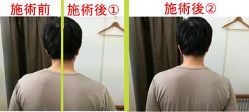 整体マッサージに来院された男性、施術前と後で肩の高さが違います。