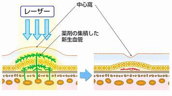 加齢黄斑変性症の治療法。レーザーによる光線力学的療法(PDT)