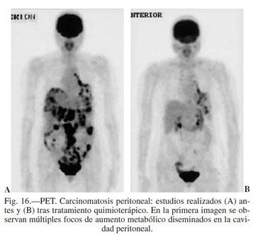 PET. Carcinomatosis peritoneal