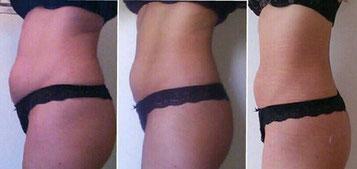 ホームケア2ヶ月(脂肪溶解ジェル+特殊素材腹巻使用)