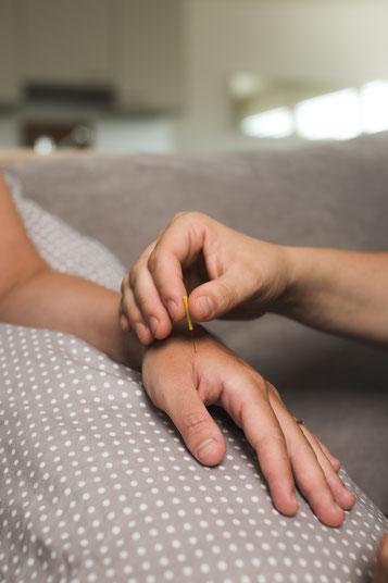 Akupunktur in der Schwangerschaft und im Wochenbett