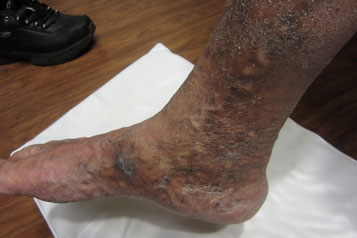Do you have burning itchy skin, chronic leg pain and have been searching for an answer. Venous insufficiency is often overlooked when it comes to leg pain.