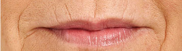 Lippen Linien / Raucher Falten