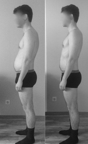Linke Seite vor, rechts kurz nach der 1. Faszientherapie Sitzung