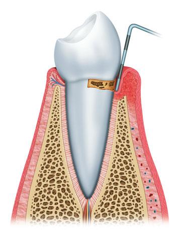 Bakterien verursachen eine Vertiefung der Zahnfleischtaschen und den Abbau des Kieferknochens