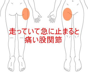 バスケットボールでの股関節痛