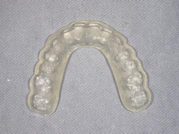 顎関節治療用スタビライゼーションスプリント