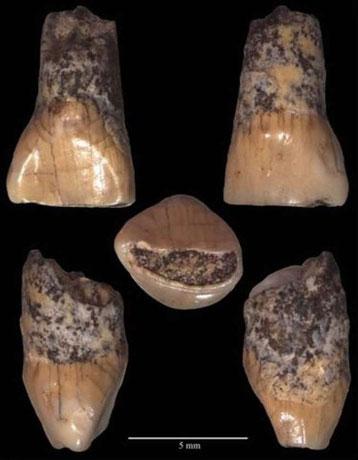 La dent de lait d'un enfant de 600 000 ans