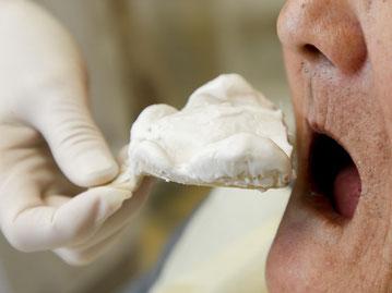 入れ歯の型取りの写真