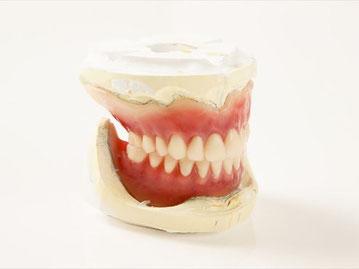 入れ歯の仮合わせ(試着)の工程