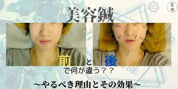 美容鍼 美容 G.L.美容鍼 金箔 金沢 石川県