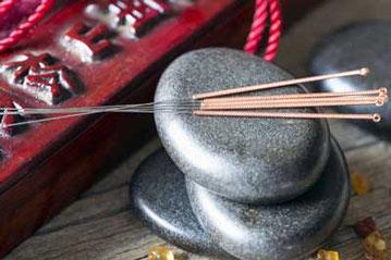 aiguilles acupuncture Lyon