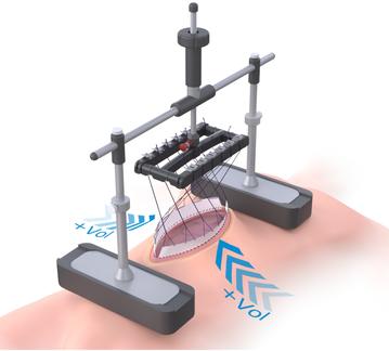 Fasciotens Abdomen 3D Modell, Anwendung am Patienten