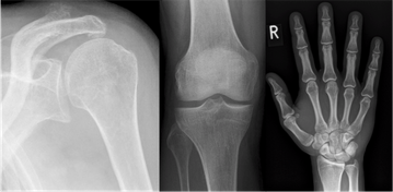 Bild: Digitale Röntgendiagnostik
