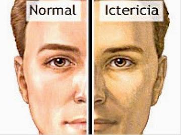 ictericia, bilirrubina, nasajpg.com, hepatitis, hemolisis,