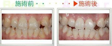 30代 女性 一番目立っていた八重歯が白くなりました