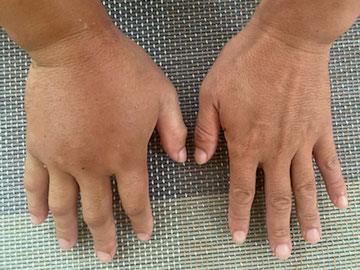 刺された腫れた右手