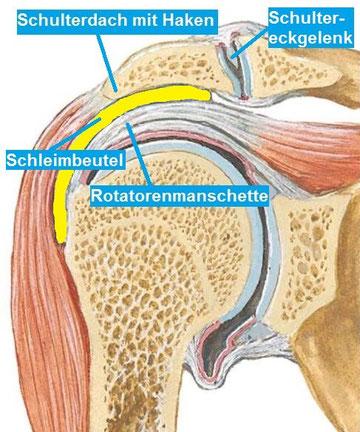 Eine häufige Ursache für diese Enge ist die Ausbildung eines knöchernen Hakens des Schulterdachs (Acromionhaken) mit Reiben am darunter liegenden Schleimbeutel (gelb) und der Sehnen (Rotatorenmanschette).