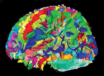 cortex-en-irm