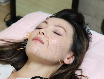 美容鍼(置鍼のイメージ)