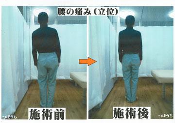 腰、背、修正写真