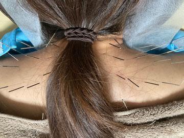 小牧 鍼灸 はり 治療 腰痛 坐骨神経痛 肩こり 首こり 自律神経 頭痛 めまい