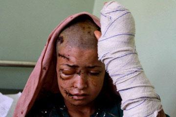 Voldtaget og mishandlet ung pige