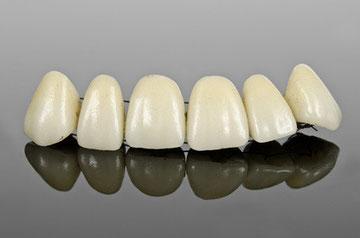 Zahnersatz Zahnarztpraxis Dr. Bettina Seidl