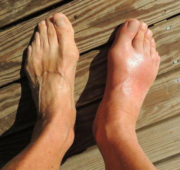 Zwei Füße, einer davon deutlich geschwollen mit Gichtanfall