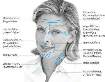 Faltenbildung im Gesicht