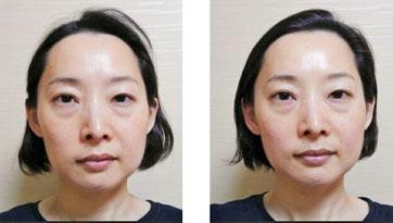 小顔シンメトリー変化の写真