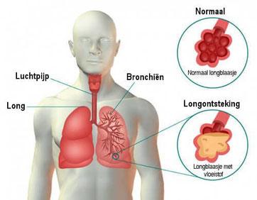 alveoli, longblaasjes, longontsteking, pneumonie