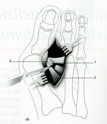 Laterales Weichteilrelease. Die Sehne des M. adductor hallucis ist vom fibularen Sesambein und der proximalen Phalanx abgelöst. 1. Sehne, 2. Muskel, 3.fibulares Sesambein.