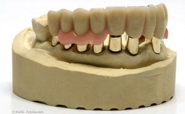 Galvanoteleskop-Prothese auf dem Gipsmodell: Zahnarztpraxis Dr. Steffen Balz in Backnang