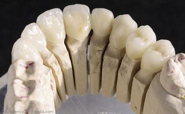 Naturgetreue Kronen aus reiner Keramik auf dem Modell: Zahnarztpraxis Dr. Steffen Balz in Backnang