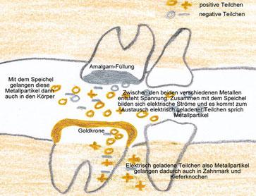 Prinzip der Strombildung durch verschiedene Mundmetalle