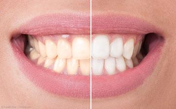 Attraktiv: Weiße Zähne mit dem Laser! Zahnarztpraxis Dr. Steffen Balz in Backnang