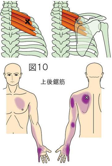 上後鋸筋トリガーポイントによる痛み